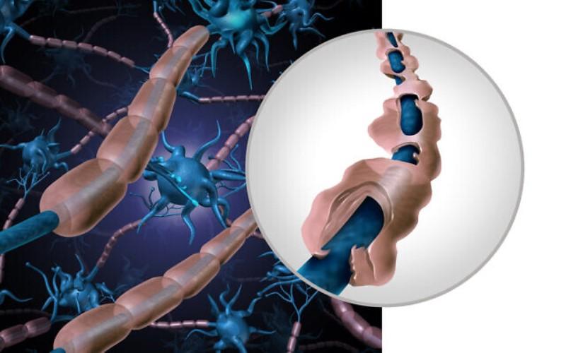 El tratamiento con células madre 'congela' la EM y permite que algunos vuelvan a caminar, según un estudio de Jerusalén