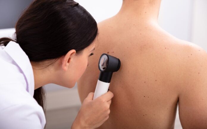 Tecnología israelí dice que da un diagnóstico de cáncer de piel preciso y sin cuchillos en segundos