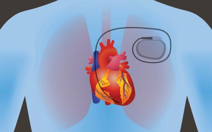 La nanotecnología israelí puede usar la energía del cuerpo para generar energía para marcapasos y más